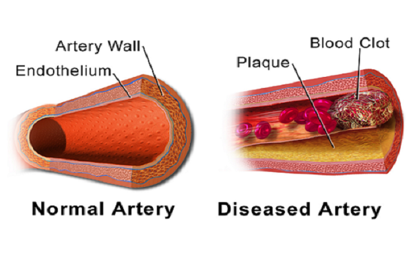 Risks for Atherosclerosis mustn't be missed or forgotten