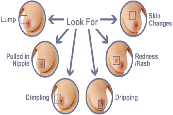 Are All Breast Lumps Breast Cancer